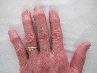 へバーデン結節の治療前の症例画像1