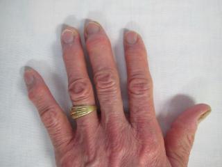 へバーデン結節の治療後の症例画像1