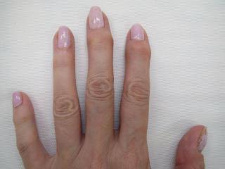 へバーデン結節の治療後の症例画像2